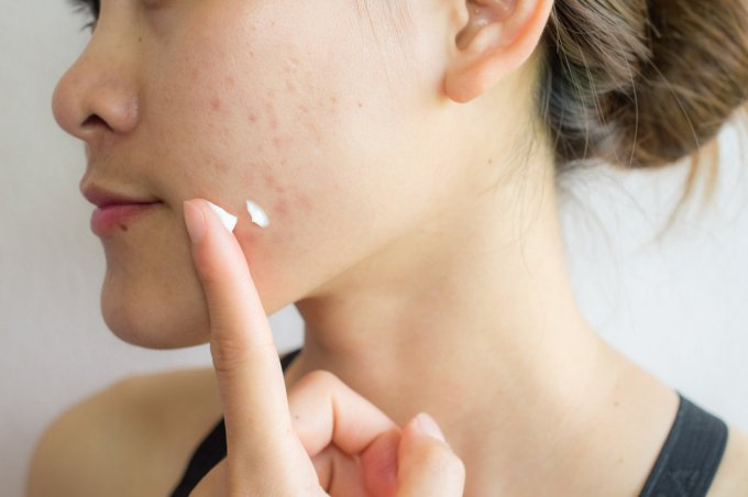 portrait of young asian woman having acne problem applying acne cream on her face