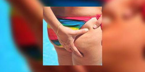 Cellulite : comment fonctionnent les armes anti-cellulite ?