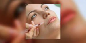 Injections antirides : nouvelles recommandations